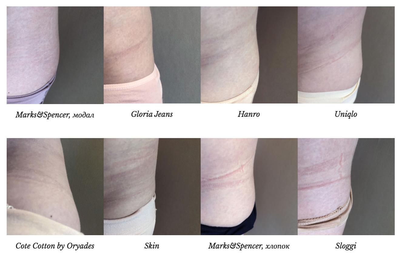 Следы на теле от хлопковых трусов, из сравнительного тестирования трусов на Garterblog.ru